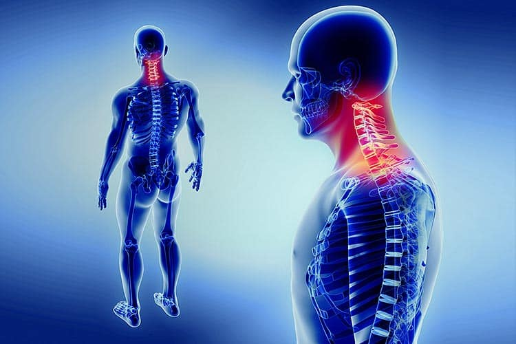 Neck pain risk factors and treatment