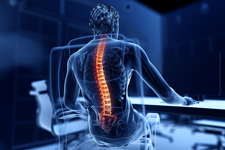 Back pain functioning and treatment options