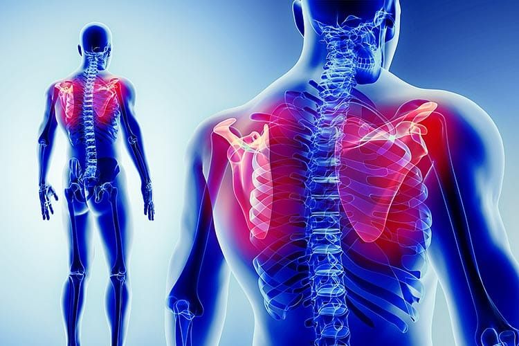 Shoulder pain Anatomy of the shoulder joint and pain therapy